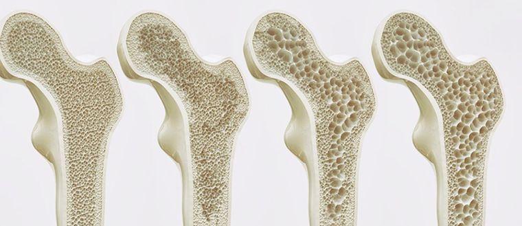 alcalinizar el cuerpo huesos