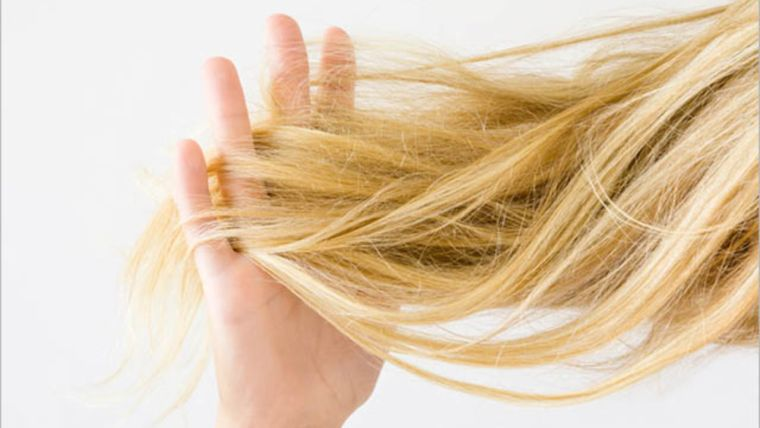 alopecia cabello