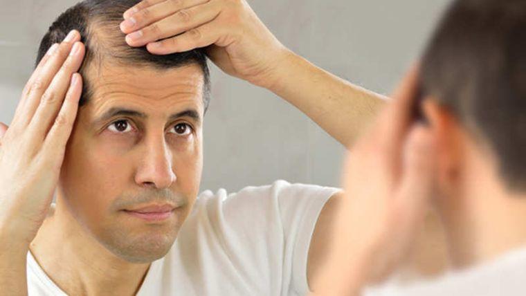 alopecia calvicie