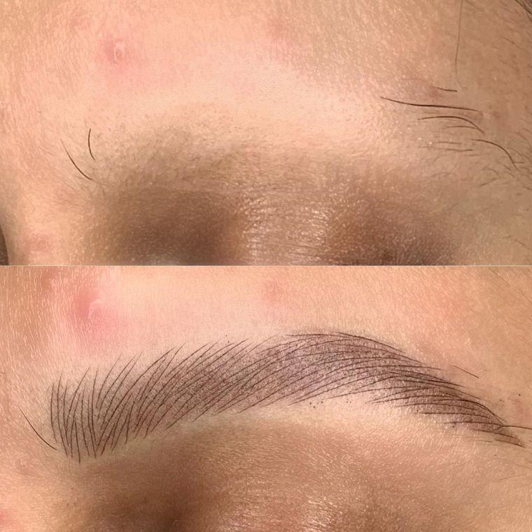 alopecia cejas