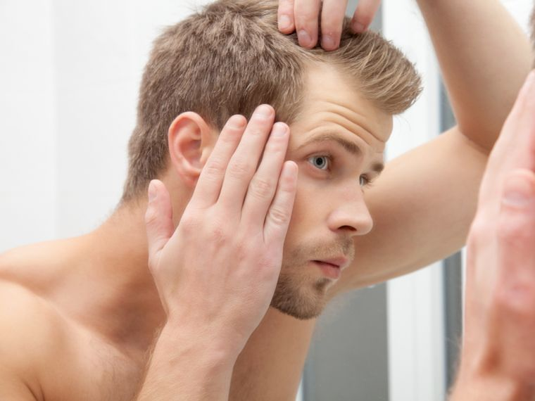 alopecia comienzo