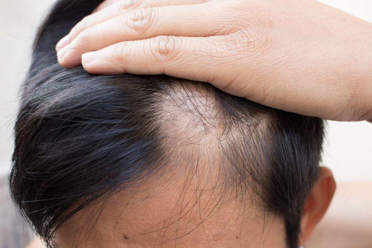 alopecia cuero cabelludo