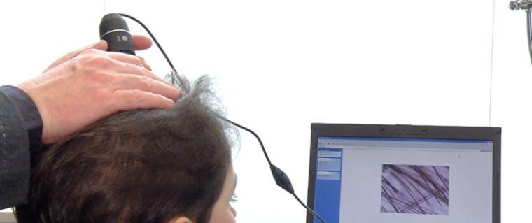 alopecia diagnostico