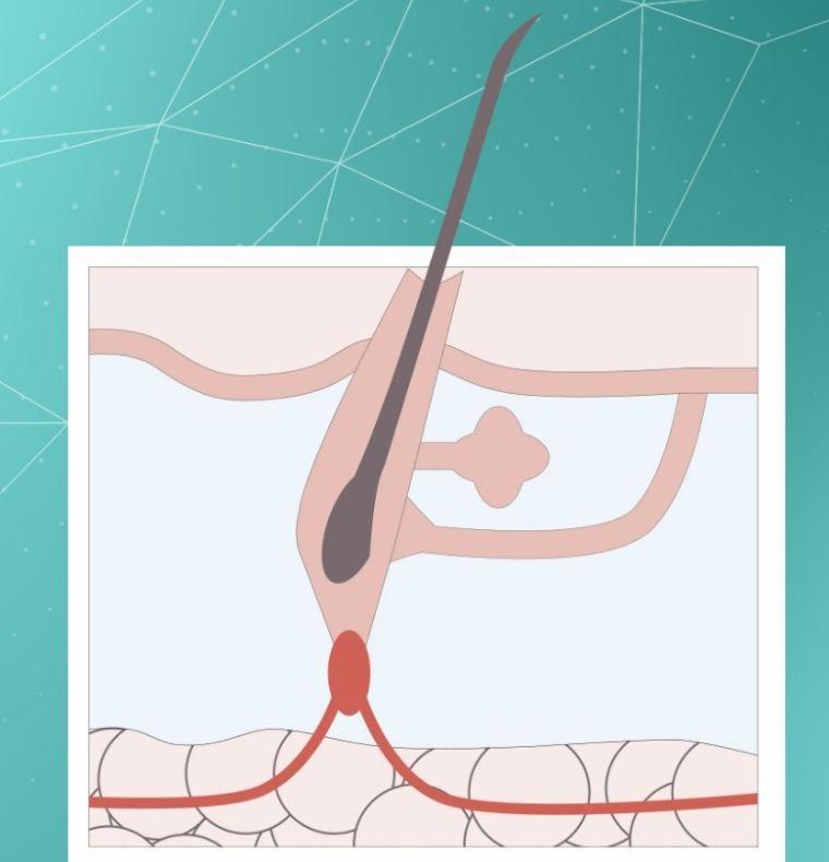 alopecia etapa catagen