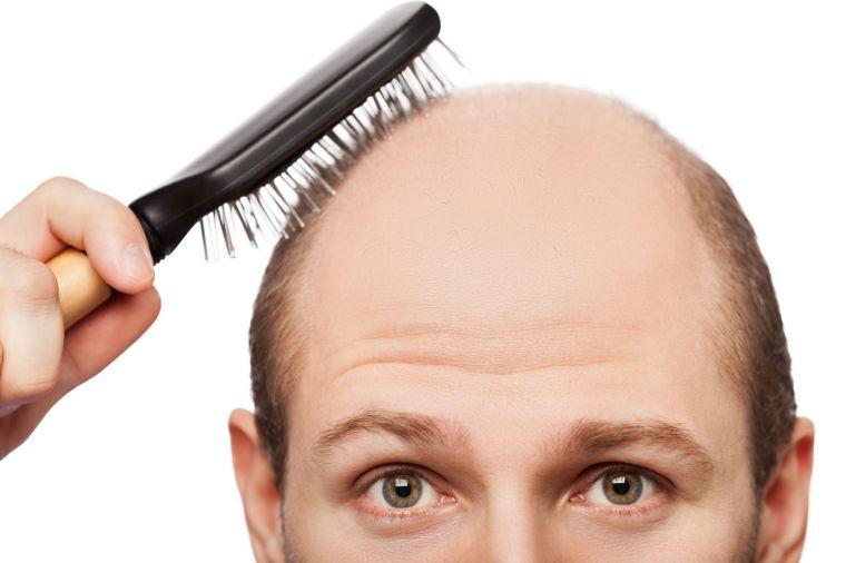alopecia genetico