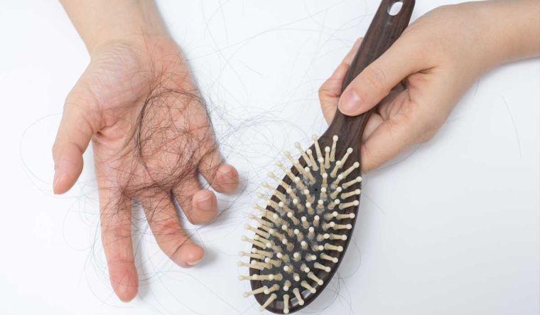 alopecia hormonas