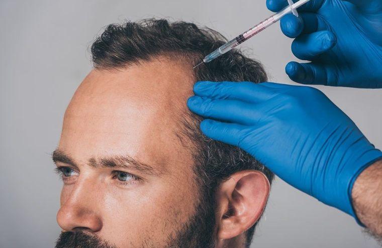 alopecia inyaccion