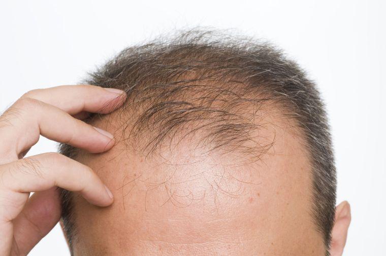 alopecia mala nutricion