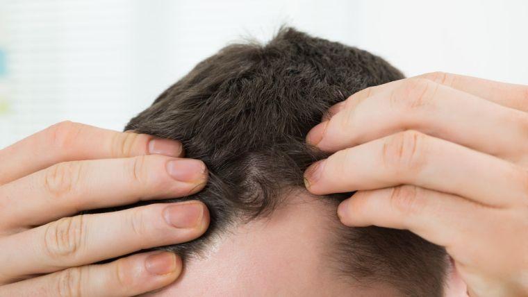 alopecia perdida