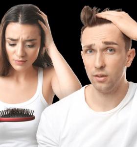alopecia sexos