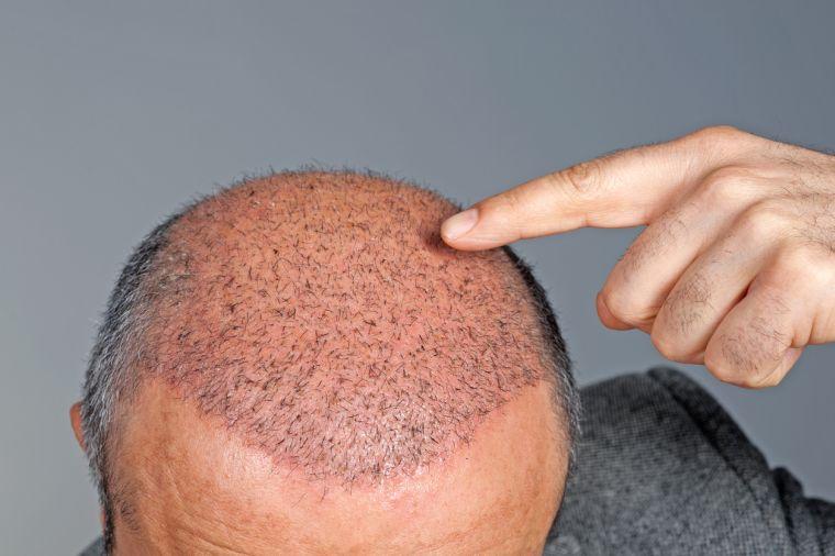 alopecia trasplante