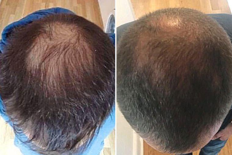 alopecia tratamiento