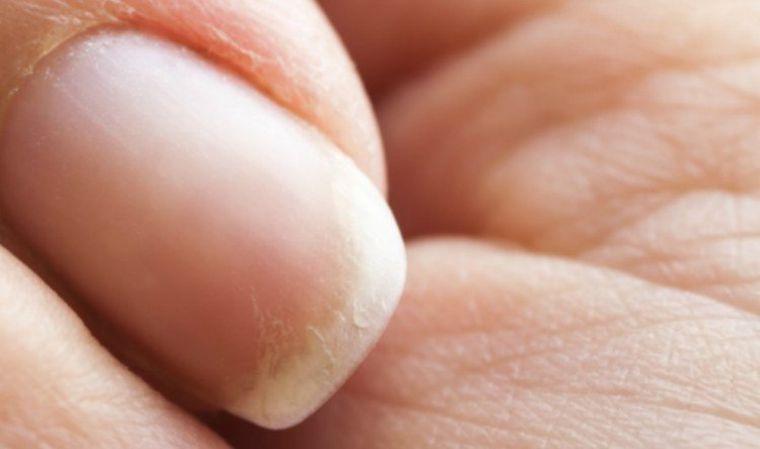 alopecia uñas