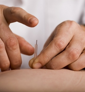 sindrome-del-intestino-irritable-acupuntura-curar