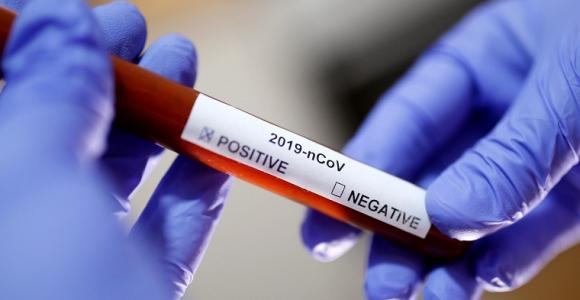 vacuna-coronavirus-noticias-medicina-estudios