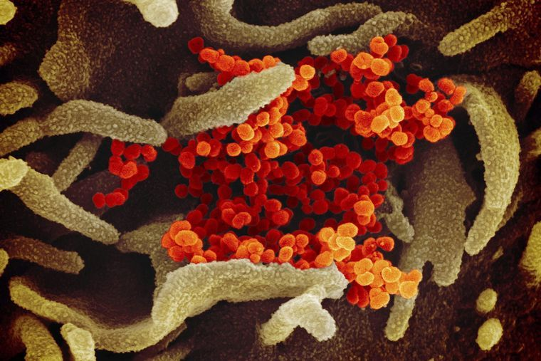 Transmision-del-coronavirus-consejos