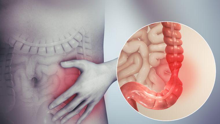 consejos saludables enterocolitis