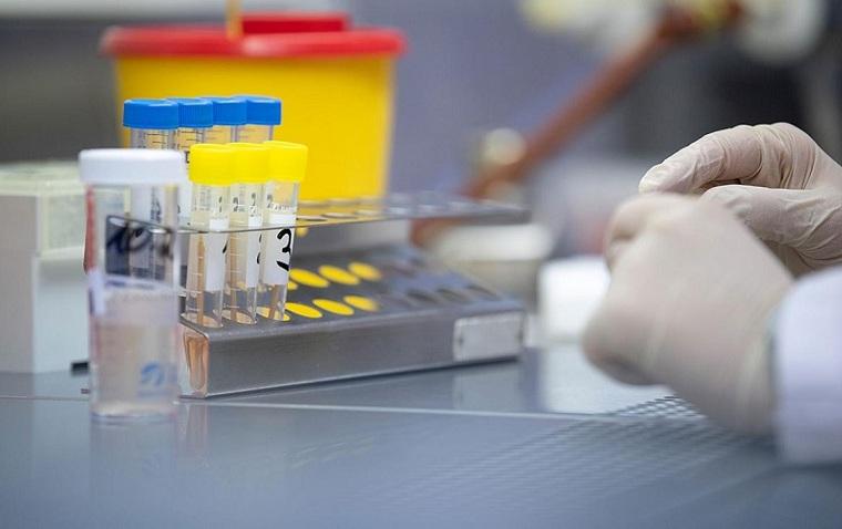 el coronavirus-pandemia-2020-