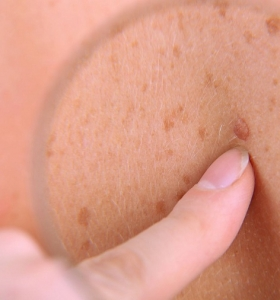 cancer-de-piel-examen-importancia