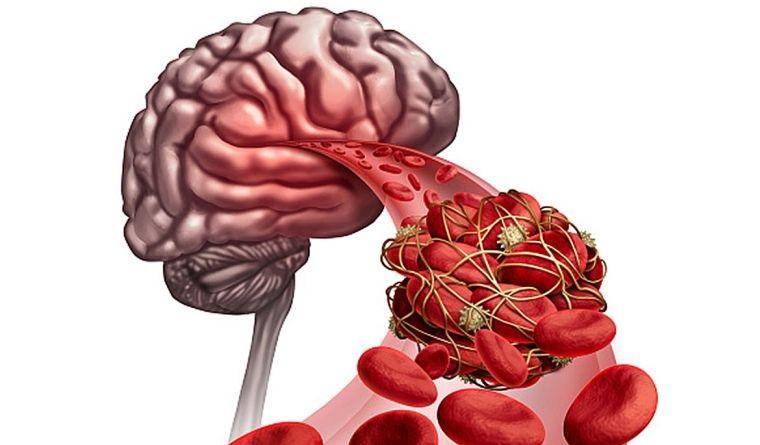 lesiones coronavirus cerebro