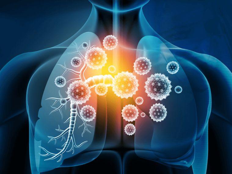 lesiones coronavirus pulmones