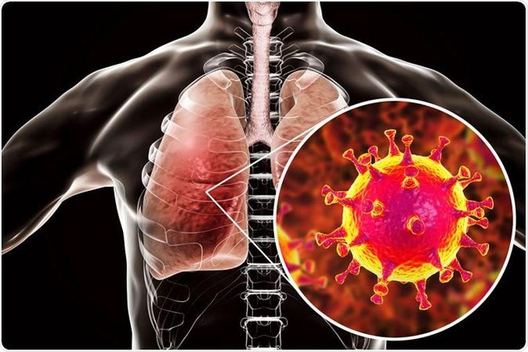 lesiones nuevo coronavirus