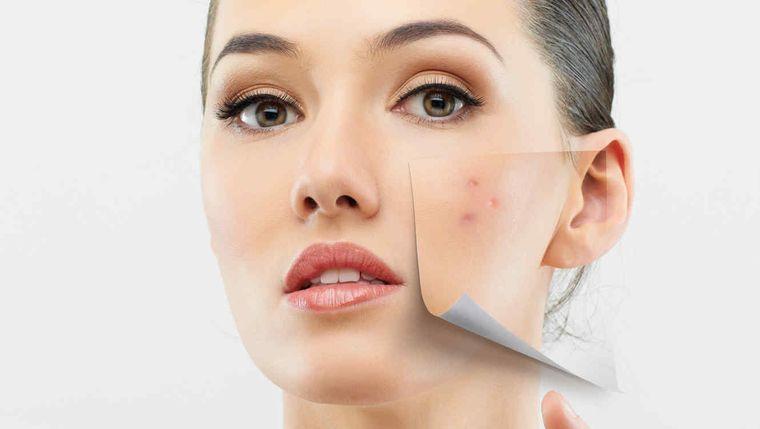 tipos de piel cuidados