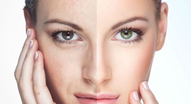 tipos de piel mantenimiento
