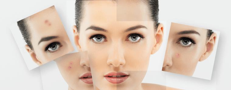 tipos de piel tratamientos
