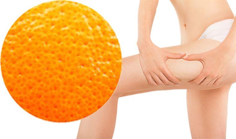 piel de naranja afeccion cutanea