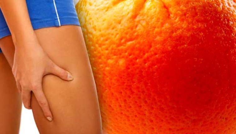 piel de naranja comun