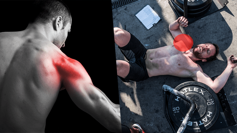 dolor muscular musculo fatigado
