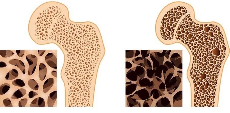 el azúcar ocasiona osteoporosis