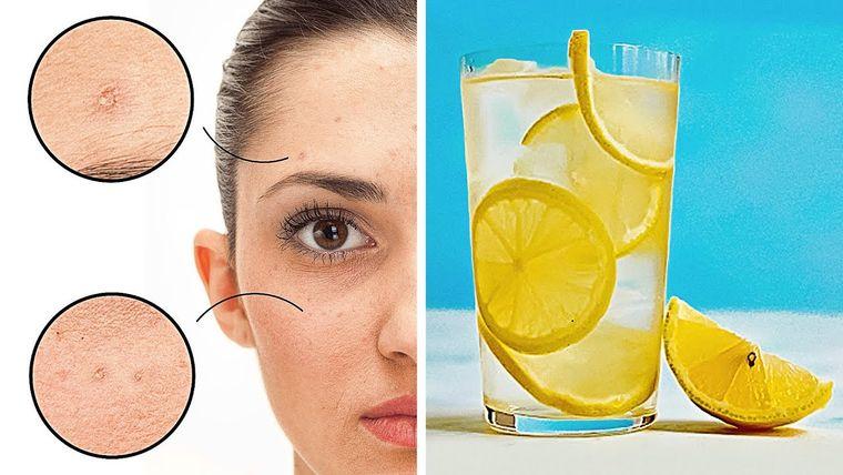 beneficios de beber agua con limon para la piel