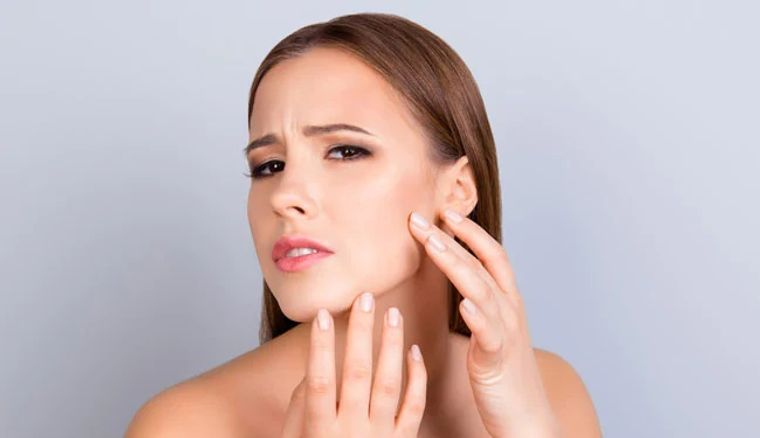 poros abiertos prevencion con no pellizcar