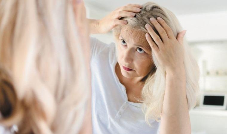 caída del cabello en mujeres signos