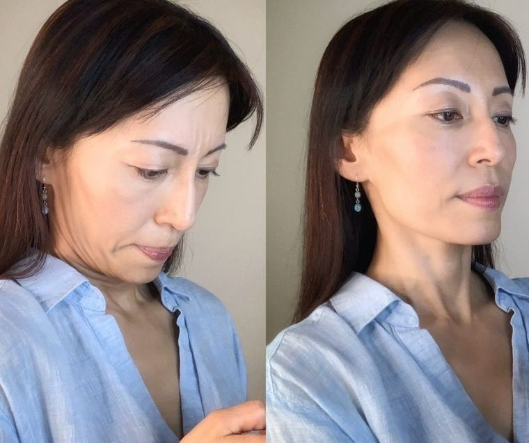 cómo reducir la papada corregir la postura