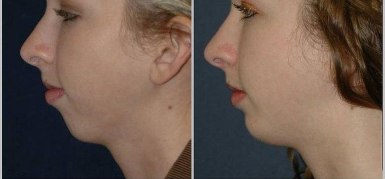 cómo reducir la papada estructura facial