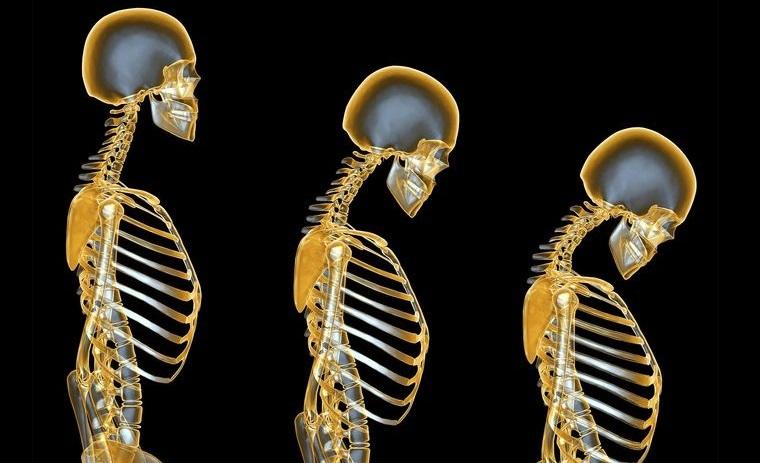 mayores de 50 cambios huesos