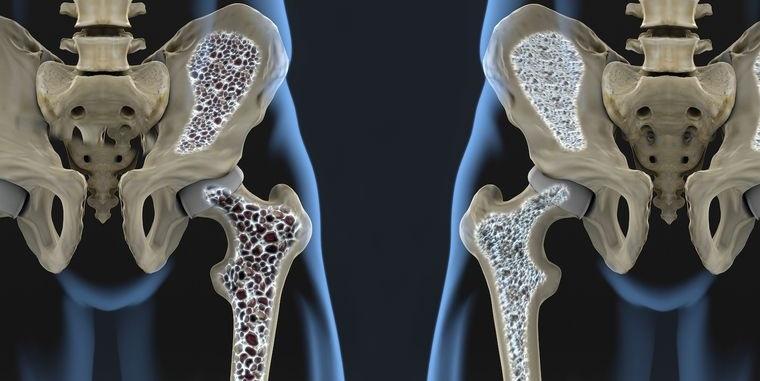 mayores de 50 riesgo osteoporosis