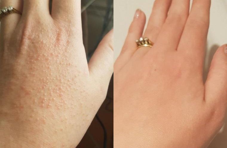 alergia al sol manos afectadas