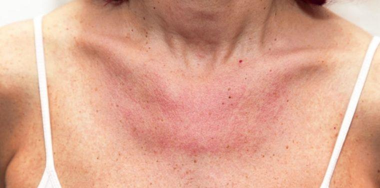 alergia al sol puede ser hereditaria
