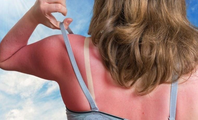 alergia al sol quemaduras graves