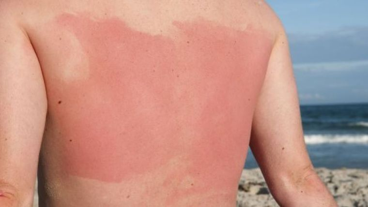 alergia al sol reaccion