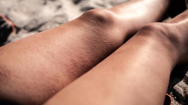 alergia-solar-piernas-mujer