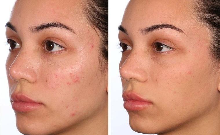 cuidados de la piel acidos faciales eliminan acne