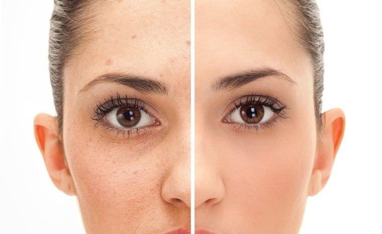 cuidados de la piel acidos faciales reparan tejidos