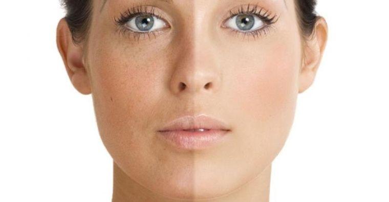 cuidados de la piel acidos faciales