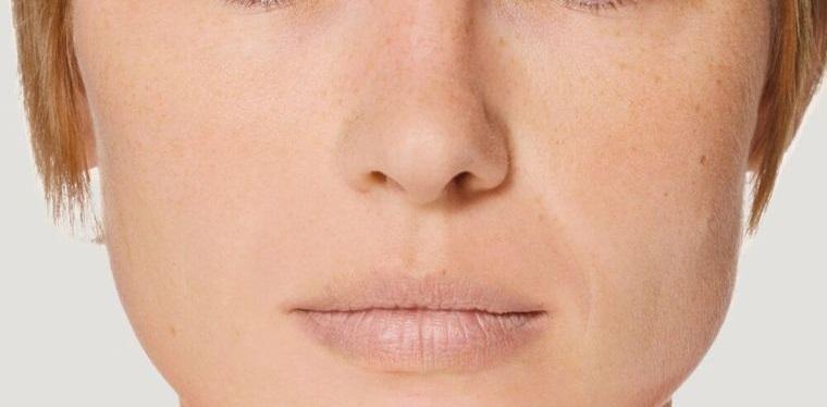 sobrehidratación labios descolorido
